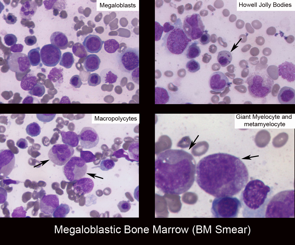 39._Megaloblastic_Bone_Marrow_(BM_Smear).jpg