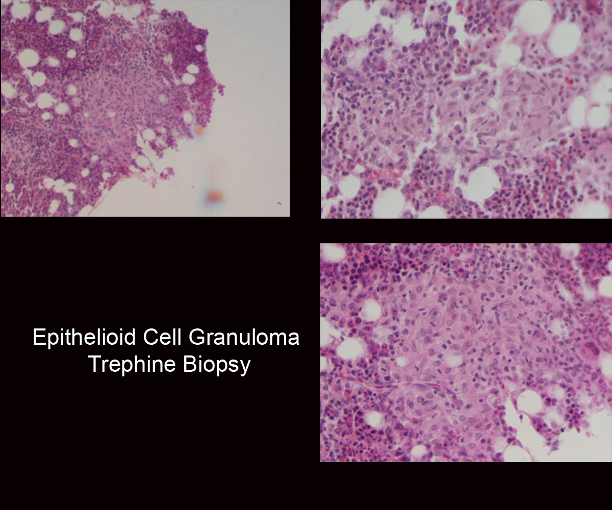 40.Epithelioid_Cell_Granuloma_Trephine_Biopsy.jpg