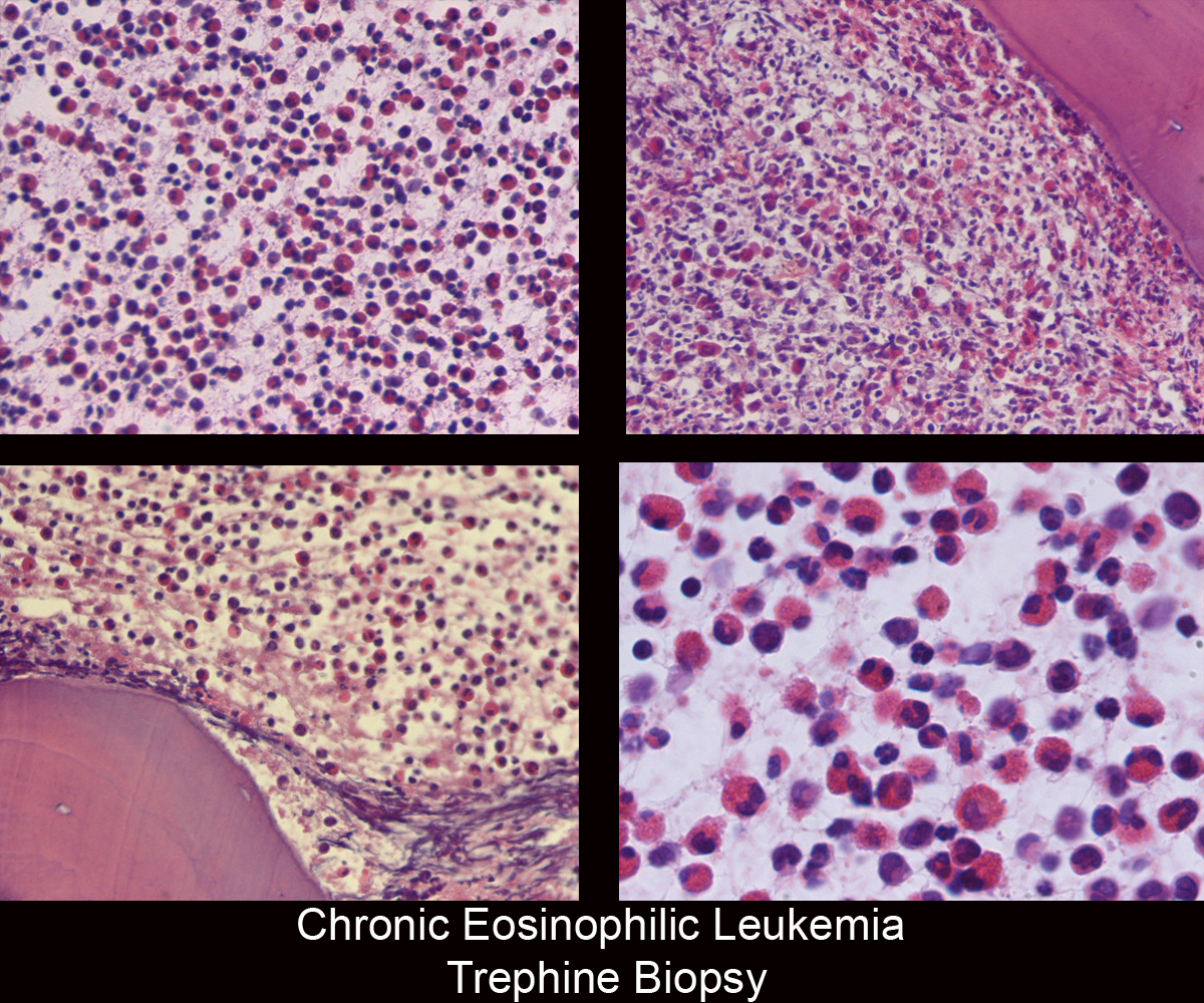 41.Chronic_Eosinophilic_Leukemia_Trephine_Biopsy.jpg